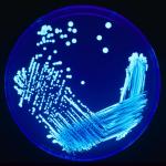 605px-Legionella_Plate_01